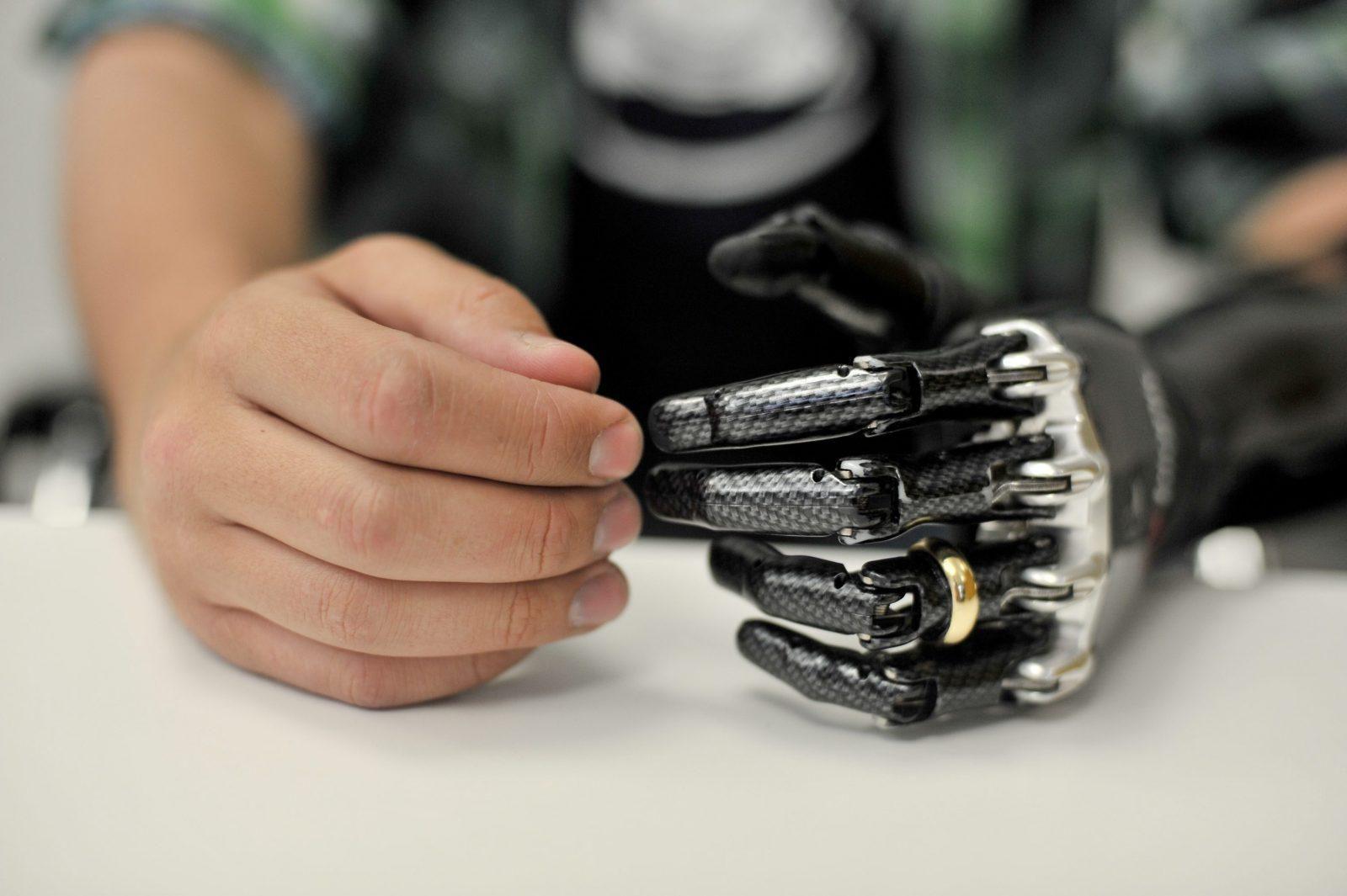 Разработка и усовершенствование протезов продолжается, и, может быть, лет через 10-15 они мало чем будут отличаться от настоящих конечностей